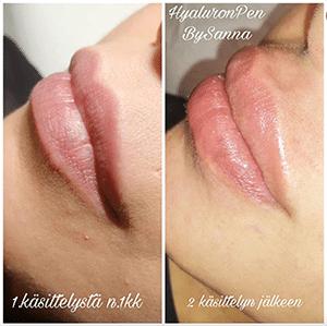 Hyaluron Pen huulet